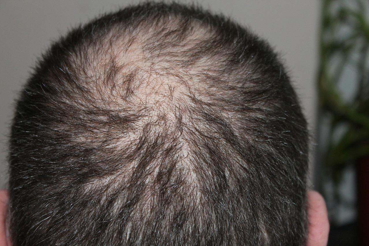 薄毛、抜け毛の男性イメージ画像