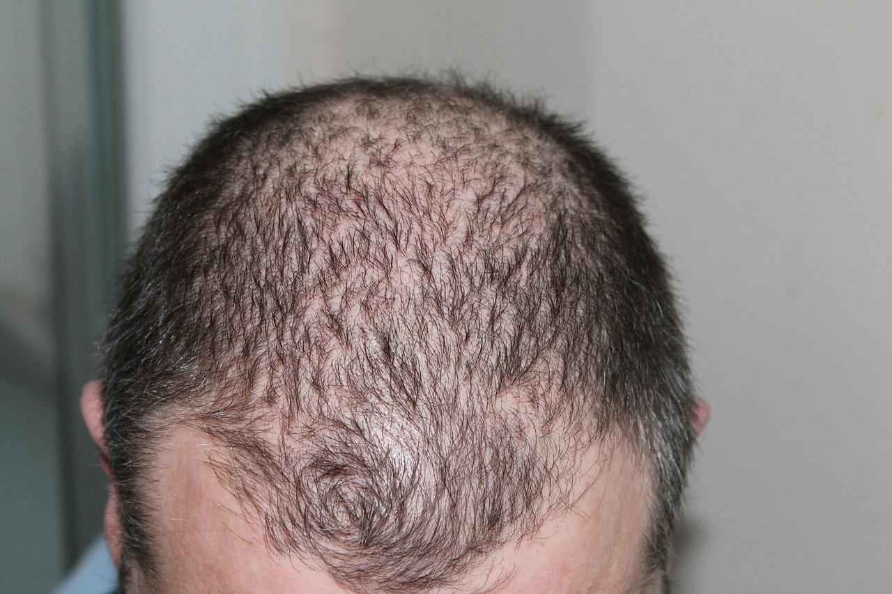 薄毛、抜け毛、育毛のイメージ画像